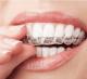 Dr Ohana Shpindel : une spécialiste de l'orthodontie près de vous